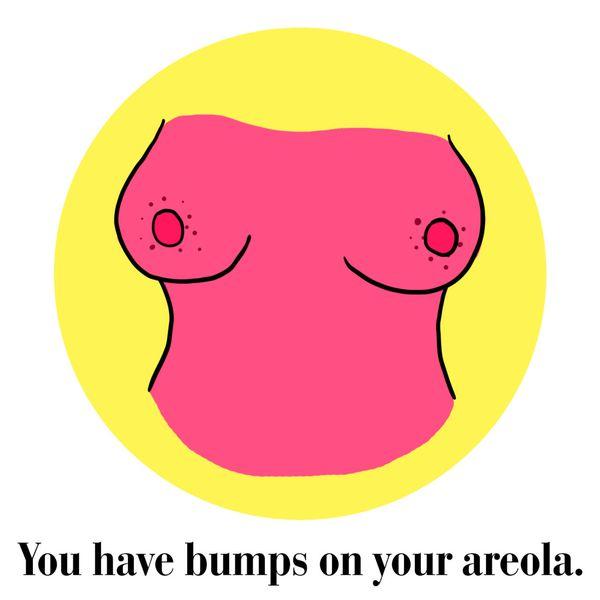 dấu hiệu bất thường ở ngực 2