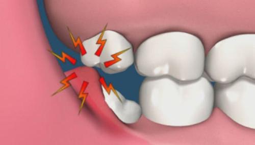 Image result for Cách phân biệt giữa răng cấm và răng khôn