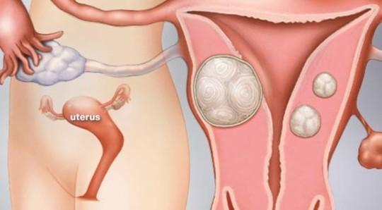 Bị u xơ tử cung cũng ảnh hưởng đến kết quả của que thử thai 1