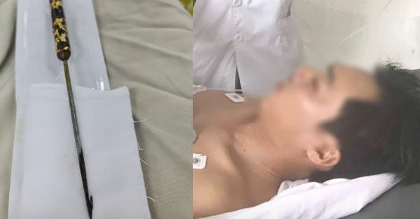 Tai nạn kinh hoàng: Trượt chân té ngã, người đàn ông bóp cò súng chĩa bắn chuột làm thủng phổi bạn đi chung
