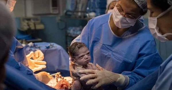 Hình ảnh em bé vừa chào đời đã