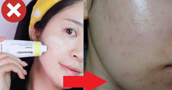 Mỗi chuyện bôi sản phẩm skincare thôi mà chị em có thể mắc 4 lỗi khiến da đã kém đẹp lại càng xấu phát hờn