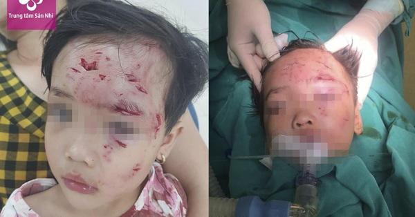 Bé gái 3 tuổi bị chó nhà hàng xóm cắn thương tâm