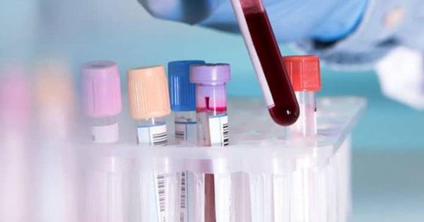 Các nhà khoa học đã tìm ra nguồn gốc của đông máu do COVID-19