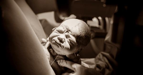 Bộ ảnh bắt trọn những khoảnh khắc ấn tượng khi em bé vừa ra khỏi bụng mẹ