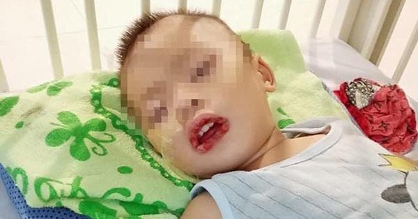 Uống nhầm thuốc tẩy bồn cầu, bé trai 21 tháng tuổi nhập viện cấp cứu vì loét thực quản, dạ dày
