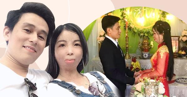 Câu chuyện đằng sau bức ảnh ông chồng điển trai và cô vợ biến dạng khuôn mặt: Khẳng định