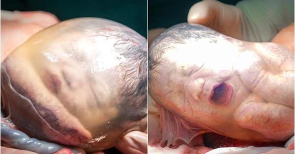 Ca sinh ba tự nhiên chào đời tại Bệnh viện Từ Dũ, 2 bé vẫn còn nằm nguyên trong túi ối