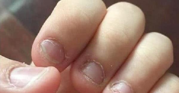 Mẹ tự hào vì con trai 5 tuổi luôn giữ móng tay gọn sạch, để rồi