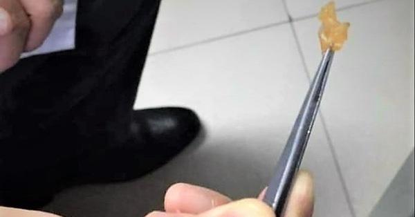 Dây chun nằm sâu trong mũi bé trai 2 tuổi ở Hải Phòng