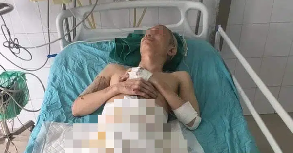 Đốt than sưởi ấm, người đàn ông bị bỏng nặng phải cắt cụt 2 chân