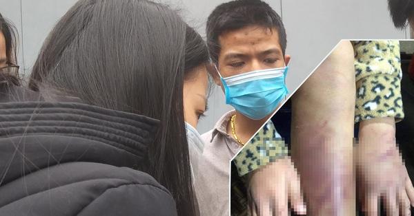 Tâm sự xót xa của bố đẻ bé gái 12 tuổi nghi bị mẹ và người tình bạo hành dã man ở Hà Nội