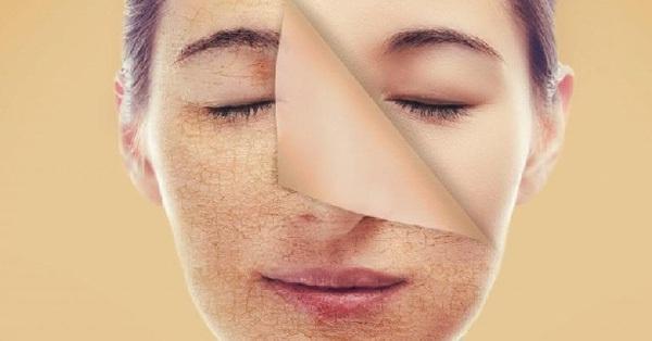 6 tuyệt chiêu giúp bạn lấy lại làn da đẹp sau Tết