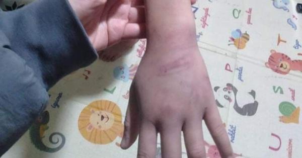 Bé gái 12 tuổi ở Hà Nội nghi bị mẹ và nhân tình bạo hành, xâm hại: