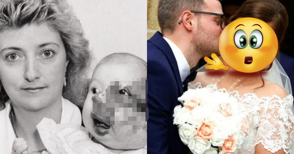 """Gương mặt biến dạng vì khối u, bé gái bị hàng xóm bảo ra đường phải mang bao trùm đầu để rồi có màn """"vịt hóa thiên nga"""" ngay ngày cưới"""