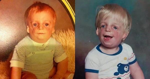 Chàng trai mặt chim bị bỏ rơi khi vừa chào đời 36 tiếng, từng tuyệt vọng vì bị bắt nạt học đường nhưng cuộc sống sau 34 năm khiến ai nấy ngỡ ngàng