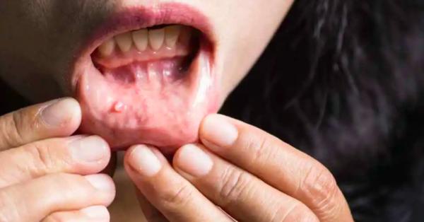 Một người có ung thư miệng sắp di căn sẽ xuất hiện 2 dấu hiệu nhỏ này, bạn phát hiện sớm sẽ kéo dài được thời gian sống