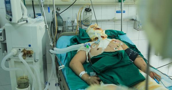 Cha bỏng nặng do giật điện cao thế, mẹ bầu tháng 7 đau xót mỗi tối khi 4 con thơ hỏi