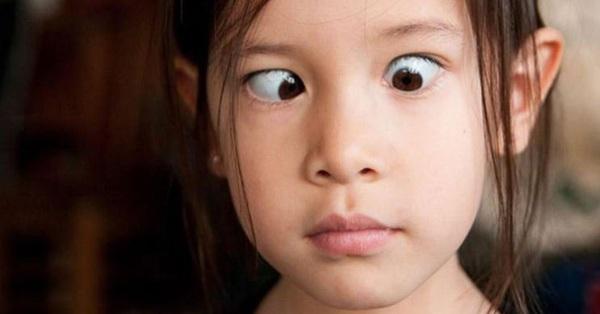 Trẻ hiếng mắt có phải chữa trị?