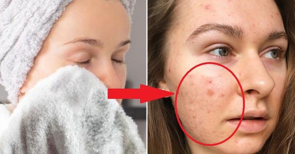 Nếu biết lý do khiến làn da ngày càng nhăn nheo mụn nhọt, bạn sẽ