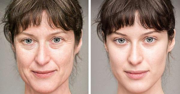 Điều gì sẽ xảy ra với làn da của bạn nếu bạn ngủ mà không có gối?
