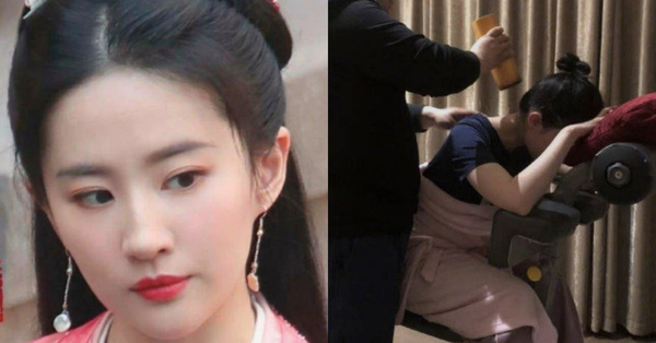 Đang quay phim cùng Trần Hiểu mà Lưu Diệc Phi lộ ảnh chấn thương đến mức phải châm cứu cột sống cổ