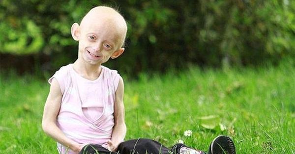 """Hội chứng Progeria: Giải mã bí ẩn của những đứa trẻ """"già sớm"""""""