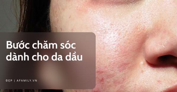 Bước skin care chuẩn chỉnh dành cho nàng da dầu: Loại sữa rửa mặt kiềm dầu hiệu quả nhất sẽ chứa thành phần này