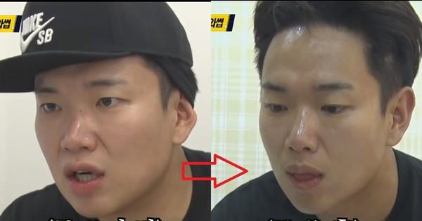 Phương pháp làm nhỏ mặt vi diệu của hầu hết idol Hàn đang gây xôn xao: Hiệu quả ngay sau 10 phút, không phẫu thuật đau đớn
