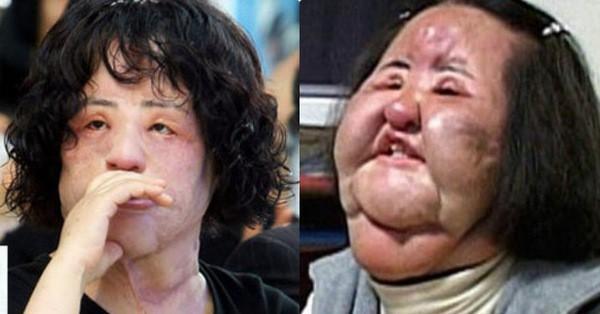Thảm hoạ dao kéo Han Mi Ok qua đời ở tuổi 57: Thời trẻ điên cuồng thẩm mỹ, mua silicon, dầu ăn ở chợ đen về tự tiêm