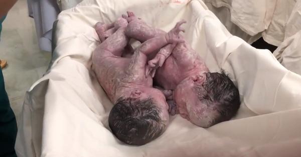 Hai bé gái song sinh dính nhau đã xuất viện: Bác sĩ kể lại giây phút đưa con ra khỏi bụng mẹ