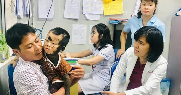 Căn bệnh hiếm gặp khiến toàn bộ cơ thể của cậu bé Quảng Ninh đều là mảng da màu đen