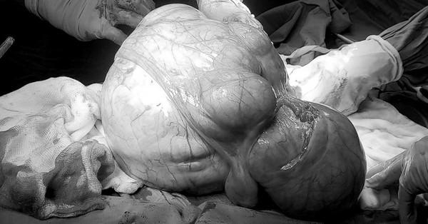 Người phụ nữ chịu đau đớn, bụng to kềnh vì căn bệnh dễ ảnh hưởng đến sinh nở nhưng nhiều chị em chủ quan