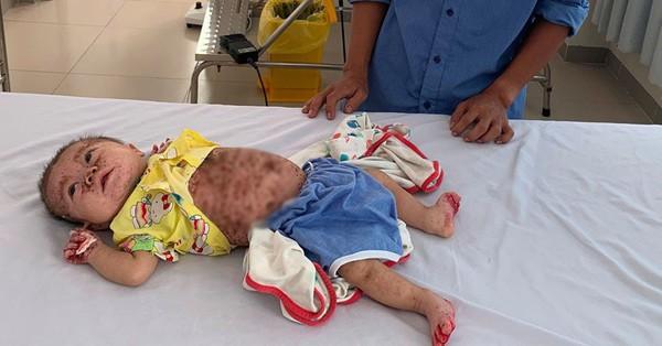 Xót xa bé gái 5 tháng tuổi bị viêm da bội nhiễm nặng, lở tróc khắp người vô cùng đau đớn