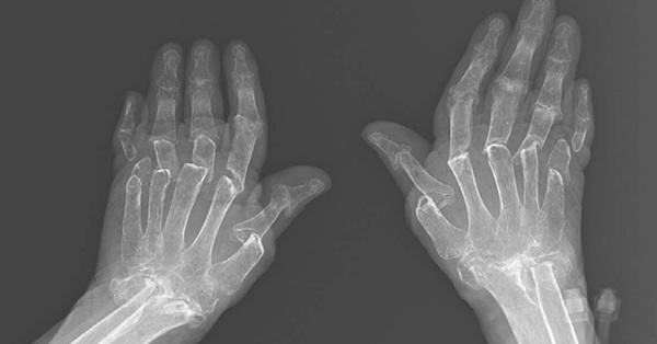 Hình ảnh chụp X-quang tiết lộ rõ thực tế bệnh nhân sống chung với bệnh viêm khớp dạng thấp khổ sở thế nào