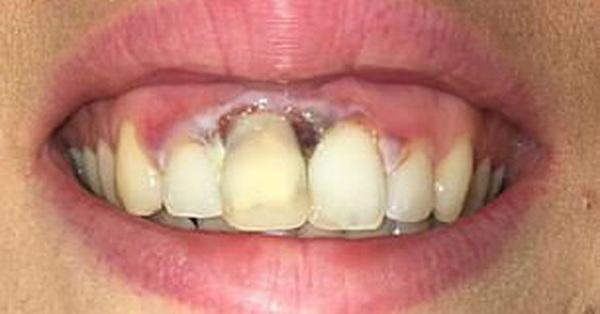 """Đặt niềm tin khi tẩy trắng răng tại thẩm mỹ viện """"trôi nổi"""", bà mẹ trẻ phải chịu thương tổn này vĩnh viễn suốt đời"""