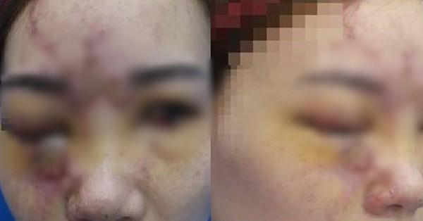 Cô gái trẻ hỏng mắt sau khi tiêm filler làm đẹp ở spa