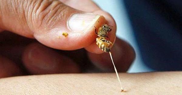 Nữ bệnh nhân bị nhồi máu cơ tim cấp do ong đốt và khuyến cáo của bác sĩ cho người trẻ tuổi