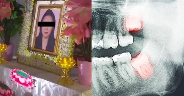 Vừa chiến thắng bệnh ung thư, người phụ nữ lại mất mạng vì... nhổ răng khôn