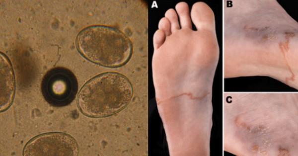 Nam thanh niên đi chân trần trên đất, về nhà tiêu chảy ra máu khoảng 30 lần/ngày