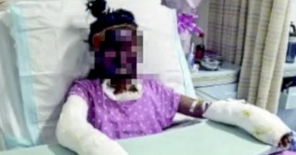 Hai bé gái bắt chước cách nổ bỏng ngô trên kênh Youtube nổi tiếng: Người bỏng nặng, người tử vong