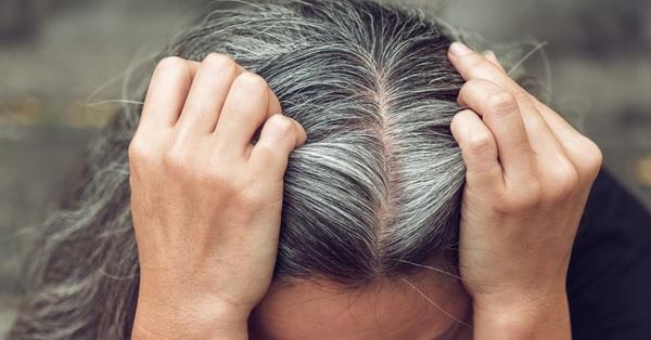 Còn trẻ mà tóc bạc mọc đầy đầu, không nắm rõ nguyên nhân này để chữa trị thì chỉ khiến chị em nhanh già và kém sắc hơn thôi