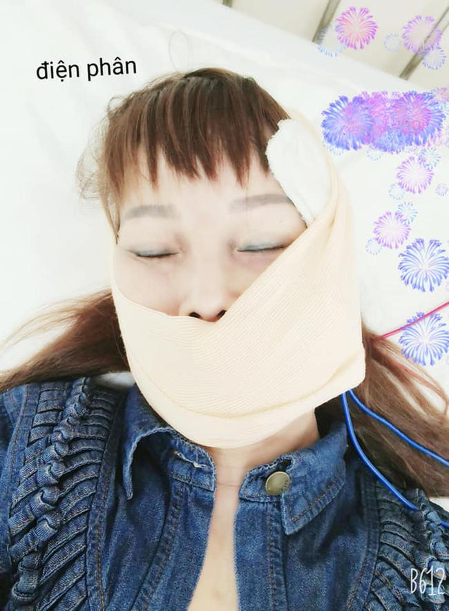 """Cô dâu 63 tuổi than thở vì phải nhập viện trị méo miệng do di chứng sau phẫu thuật thẩm mỹ: """"Bác sĩ nói để lâu là méo cả đời"""" - Ảnh 3."""