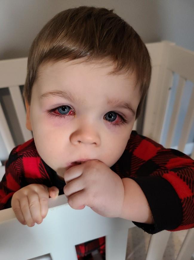 Mẹ hoảng loạn tột độ khi con trai suýt bị mất đi thị lực bởi món đồ chơi quá đỗi quen thuộc - Ảnh 6.