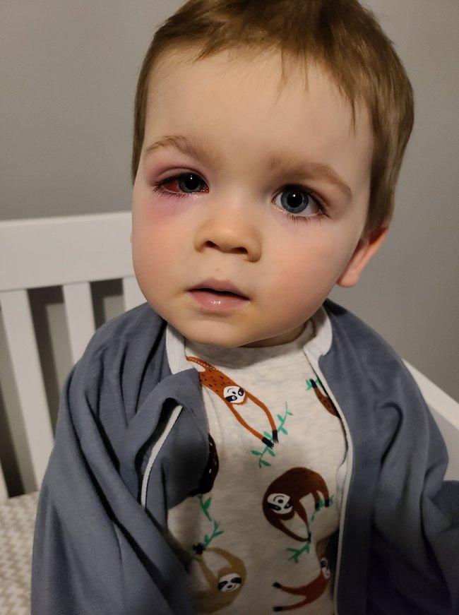 Mẹ hoảng loạn tột độ khi con trai suýt bị mất đi thị lực bởi món đồ chơi quá đỗi quen thuộc - Ảnh 4.