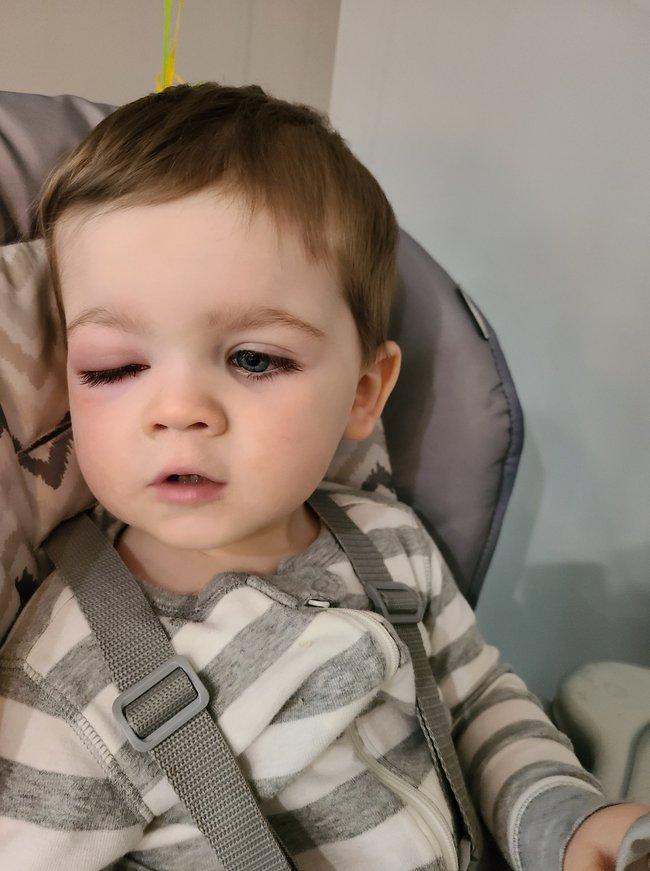 Mẹ hoảng loạn tột độ khi con trai suýt bị mất đi thị lực bởi món đồ chơi quá đỗi quen thuộc - Ảnh 5.