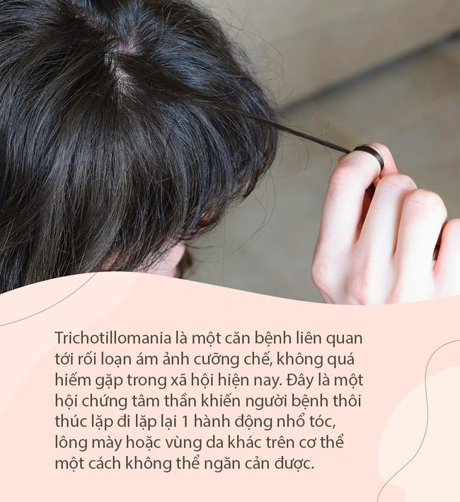 Cô gái phát điên vì nghiện nhổ tóc mỗi ngày, 15 tuổi đã hói cả đầu, hóa ra là mắc căn bệnh mà nữ giới và thanh thiếu niên chiếm tỷ lệ cao nhất - Ảnh 1.