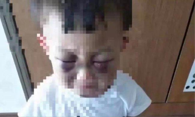Mẹ ruột phát hiện trên người con trai 3 tuổi có nhiều vết cắn và nhiều sẹo ngỡ như bị bỏng nhưng không ngờ phía sau là cả một sự thật đau lòng - Ảnh 4.