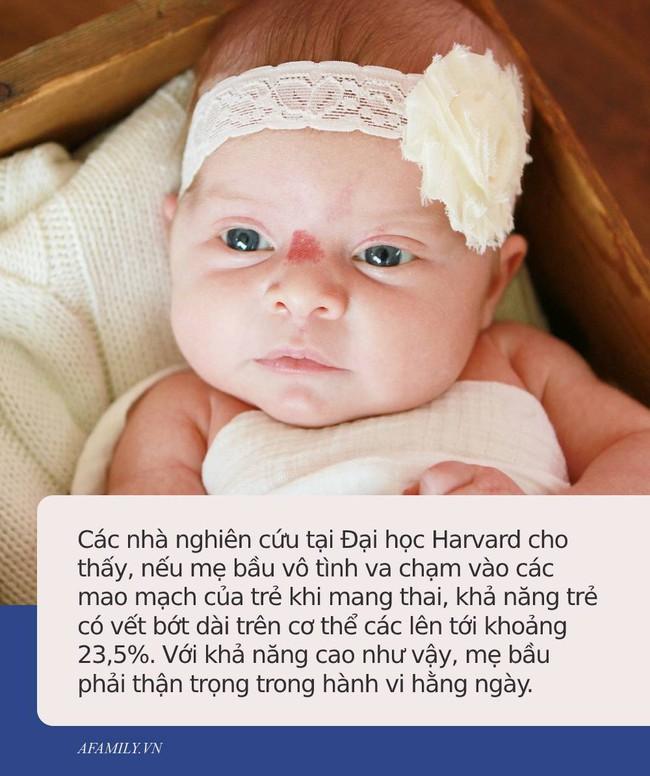 Bác sĩ chỉ ra những hành vi bà bầu cần tránh xa nếu không muốn con mình có những vết vớt xấu xí trên người - Ảnh 2.