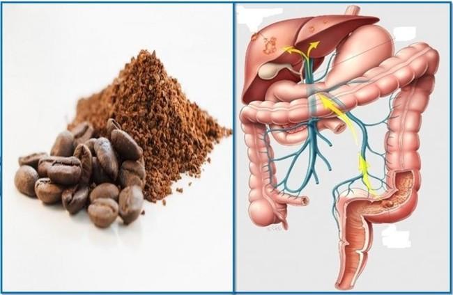 Thải độc bằng cách tháo thụt đại tràng bằng cafe: Bác sĩ vạch trần sự thật và khuyến cáo những người tuyệt đối không nên tự làm - Ảnh 4.